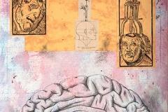 Psychosurgery - Lunacy